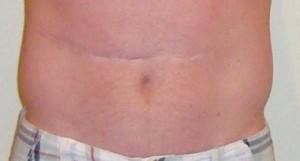 Meconium Ileus Scar