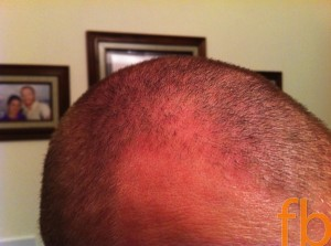 Cystic fibrosis and being bald